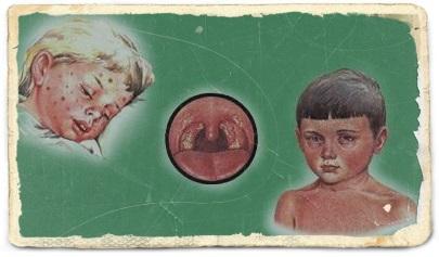 Rubeola Rujeola Oreionul Boli Infectioase Bolile Copilariei